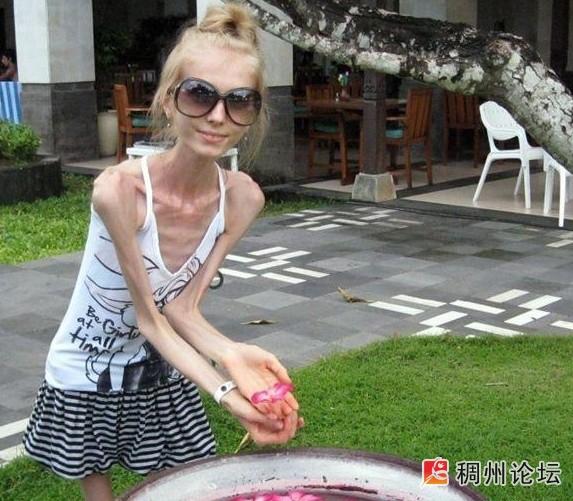 俄罗斯超骨感美女仅重20公斤 健康养生